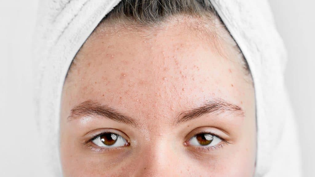 skin care untuk kulit sensitif