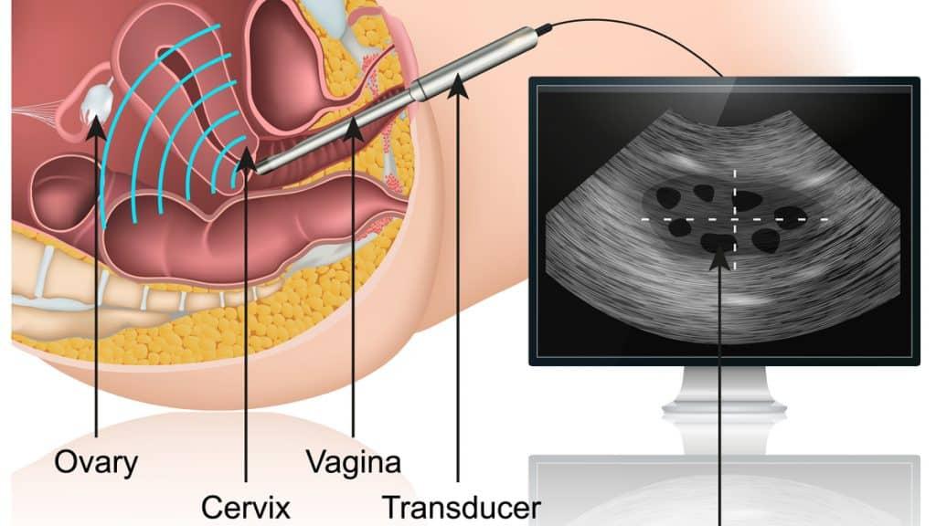 apa itu kehamilan ektopik